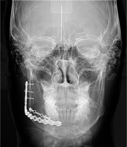cefalometricafrontal-260x300