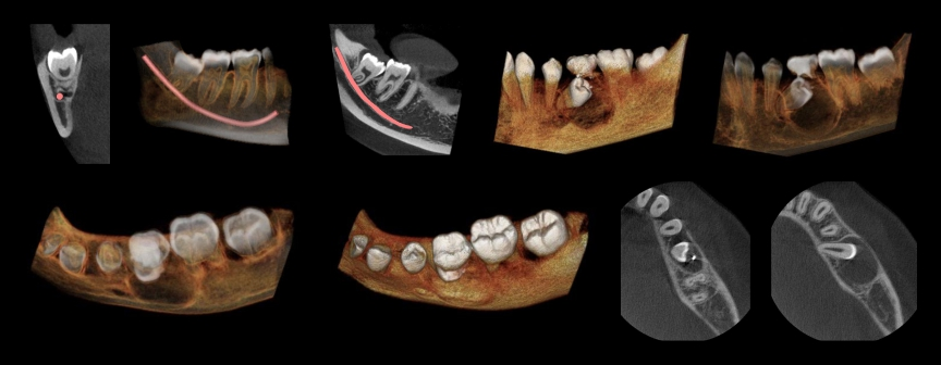 indicação-em-cirurgia-tomografia